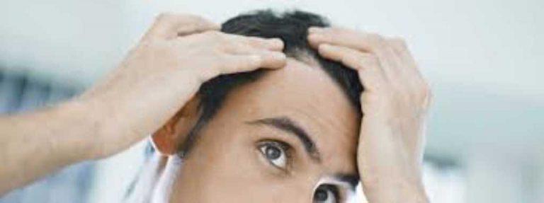 Come riconoscere una caduta dei capelli anomala e cosa ...