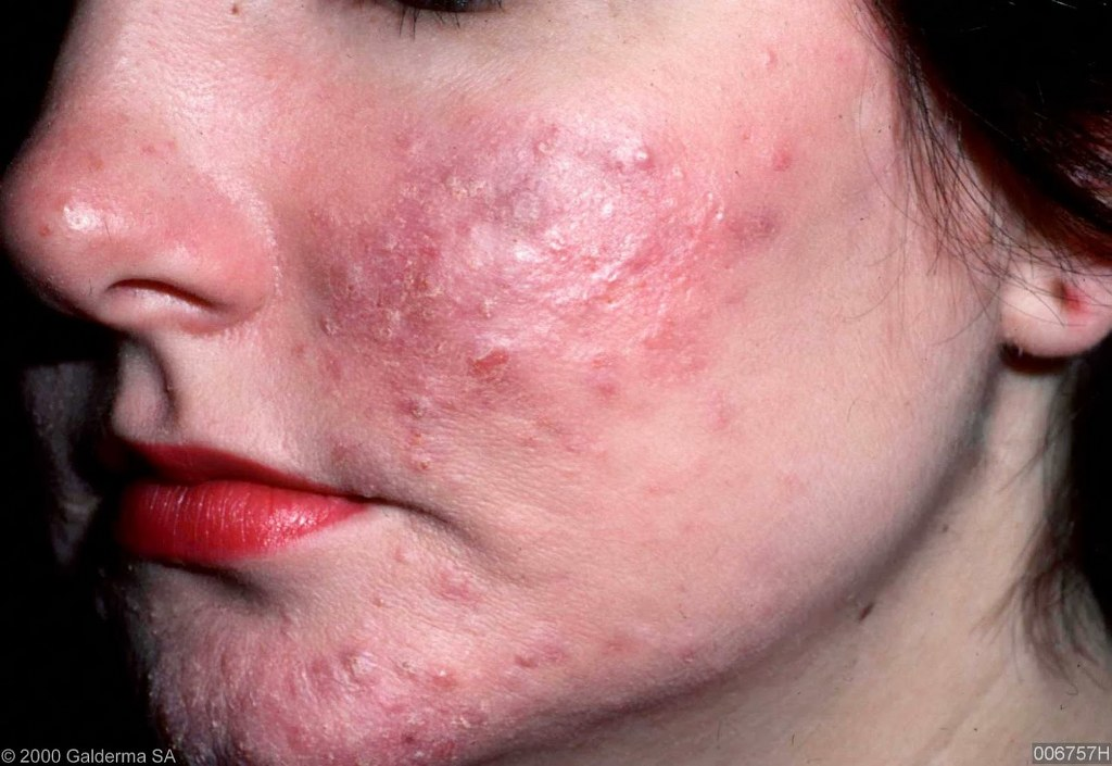acne rosacea come eliminarla