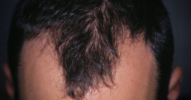 Alopecia areata: cause e rimedi da prendere in considerazione