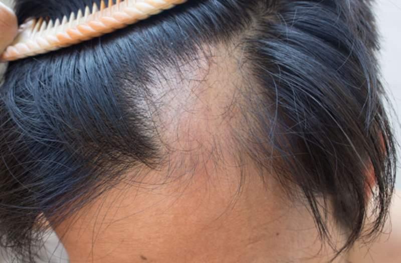 Alopecia e tiroide, tutto quello che si deve sapere