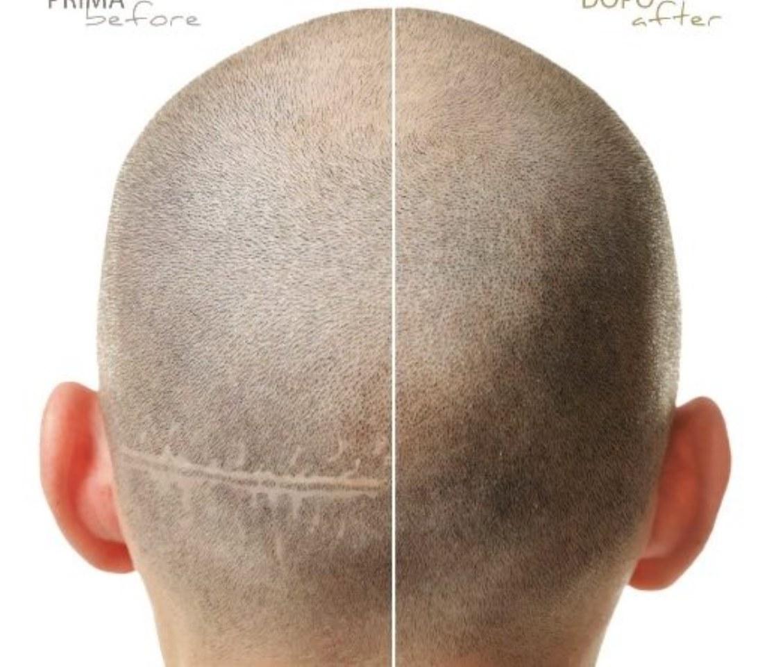 A cosa serve la tricopigmentazione? La parola agli esperti