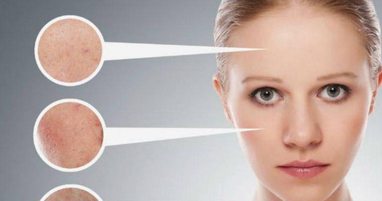 Come eliminare le macchie cutanee dal viso